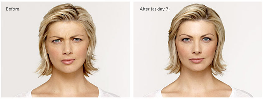 Before and After Botox Photos Dermatology Associates of the TriCities