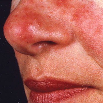 Treatment For Rosacea Dermatology Associates Dermatology